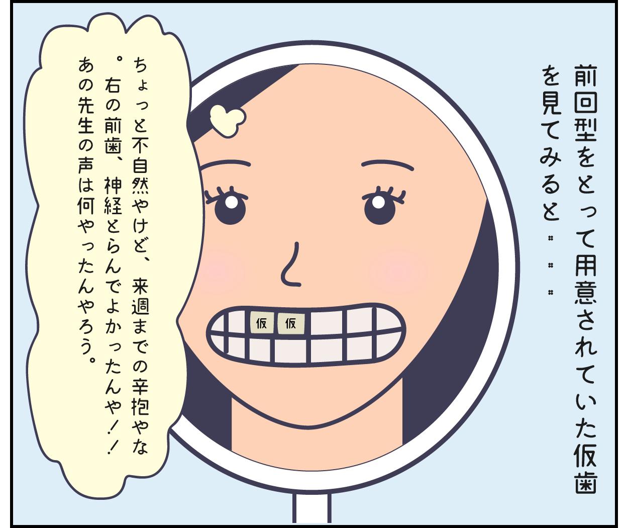 歯医者 歯科治療