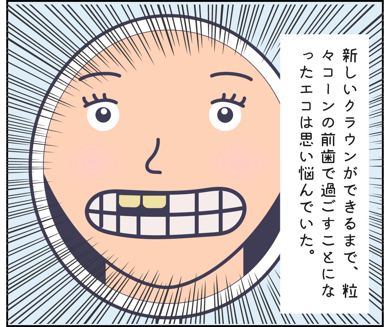 歯医者 仮歯