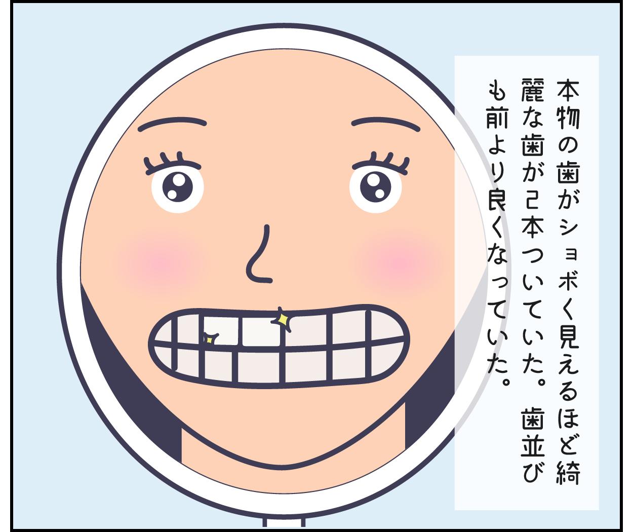 根幹治療 歯医者