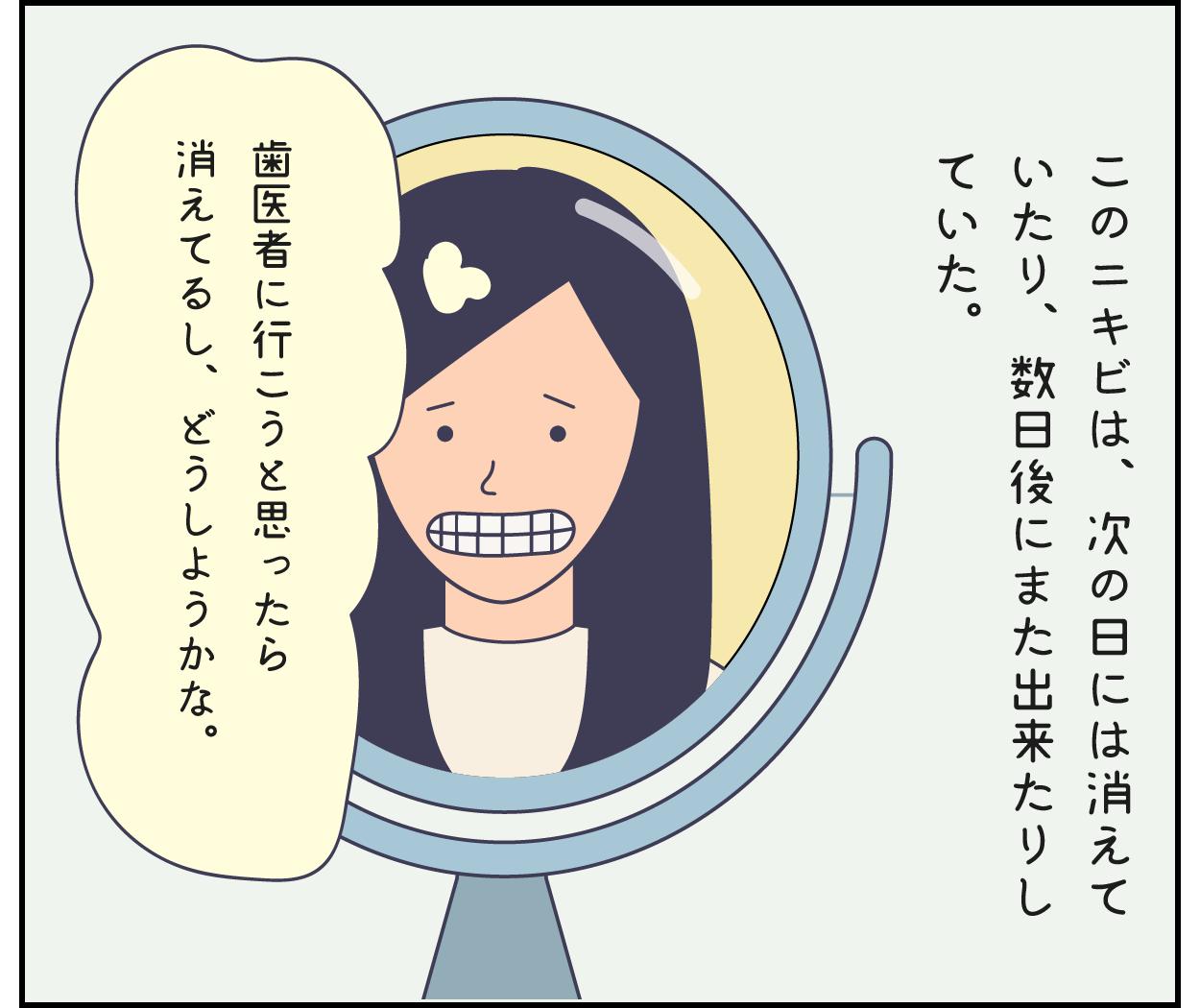 歯医者 歯茎 前歯