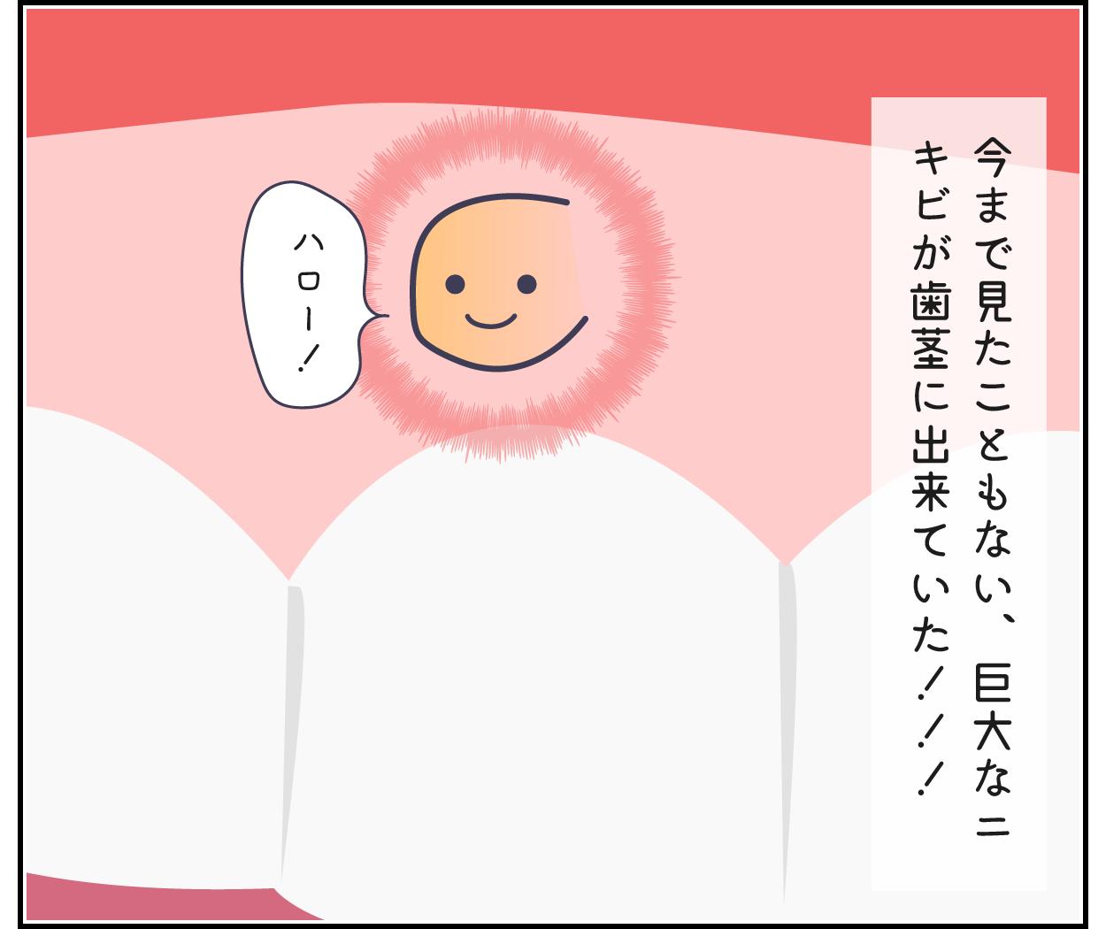 歯茎 ニキビ