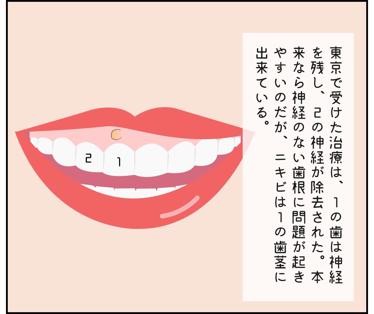 前歯 根幹治療 クラウン 歯茎 ニキビ