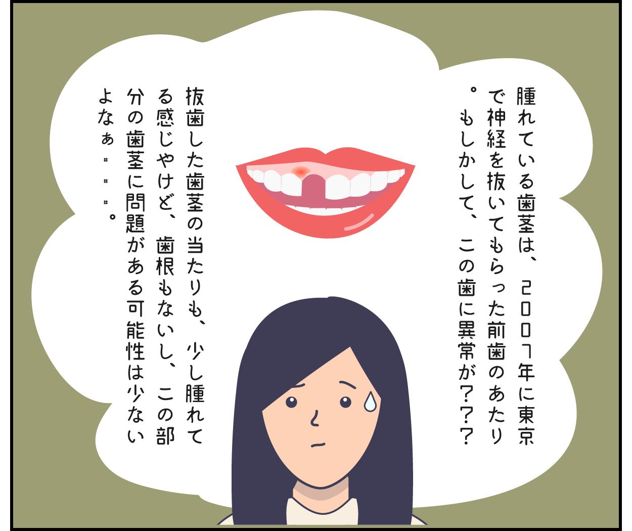 歯茎 腫れ